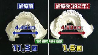 歯列矯正でいびきを克服