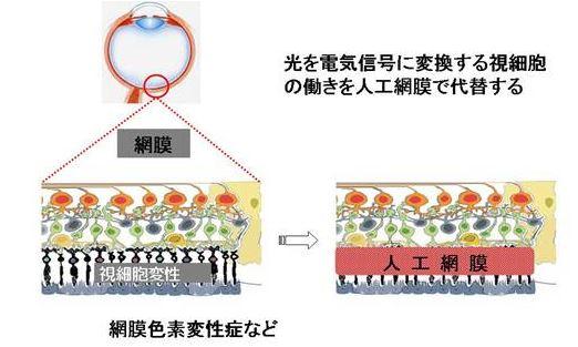 岡山大学の網膜色素変性